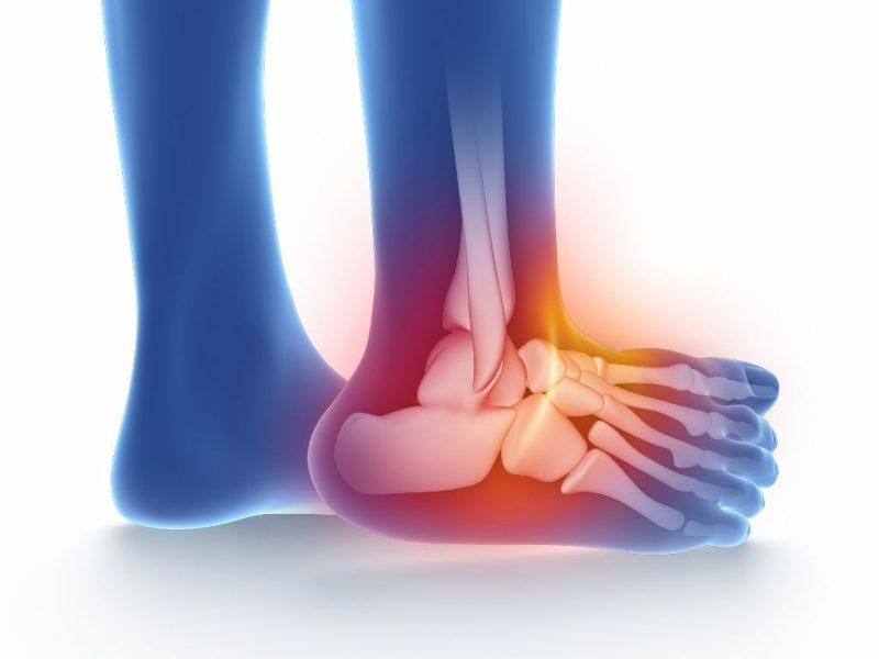 symptoms of sprain